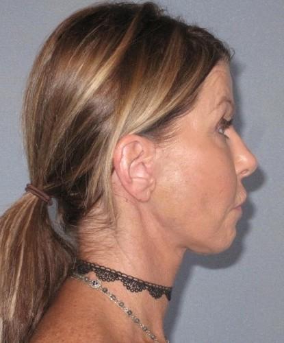 Facelift Quick Surgery Plastic Surgery Neck Lift Fat