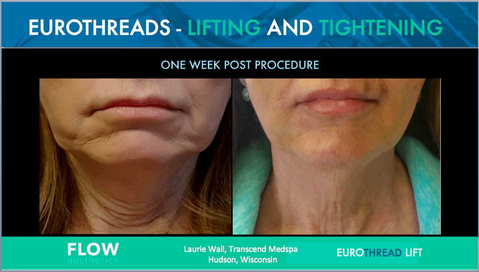 EuroThread Lift- Non-Surgical Facelift   My Beautiful Body