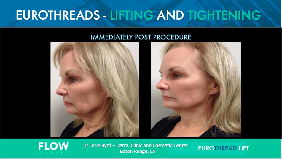 EuroThread Lift- Non-Surgical Facelift | My Beautiful Body