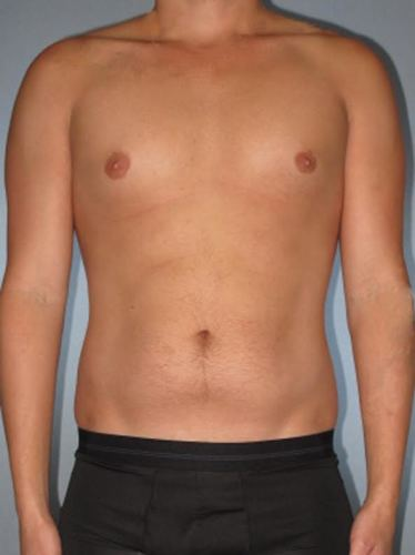 Abdominal Etching Before After Photos   Houston   Katy TX