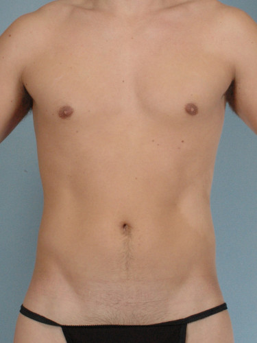 Abdominal Etching   My Beautiful Body
